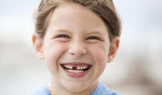 Missing Teeth image
