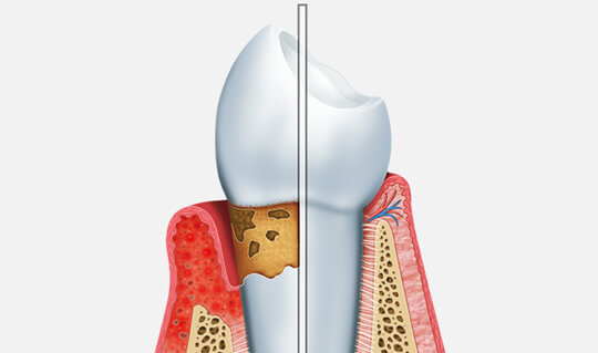 Periodontal Disease image