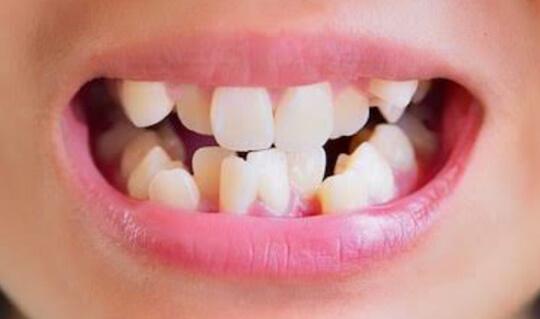 Uneven Teeth image